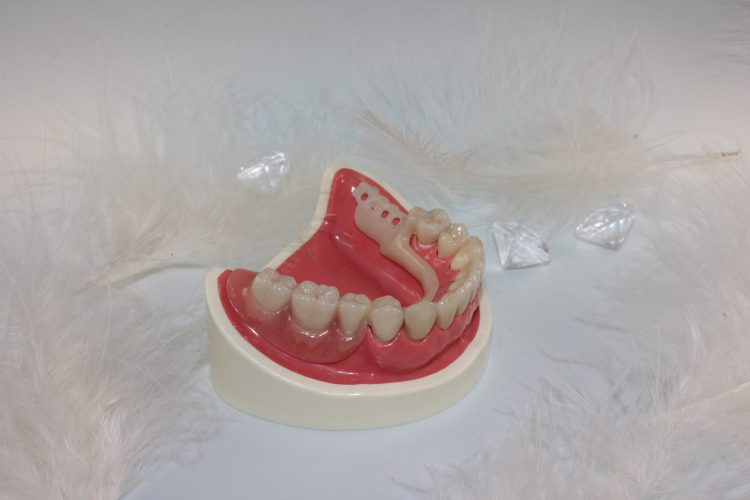 schöne Zähne Dortmund