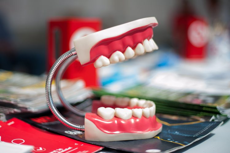 Zahnschmerzen Dortmund